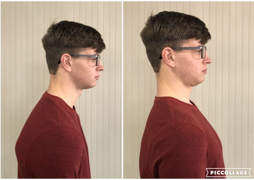 Demonstrates a simple exercise to help restore your natural posture and stop/prevent neck pain and Text Neck.