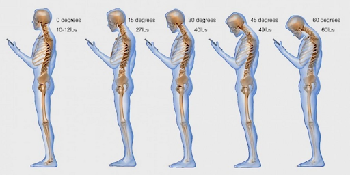 An image of five skeletons demonstrating how much strain is put on the neck depending on the degree of bend. Text Neck occurs from bending your head too far for too long.