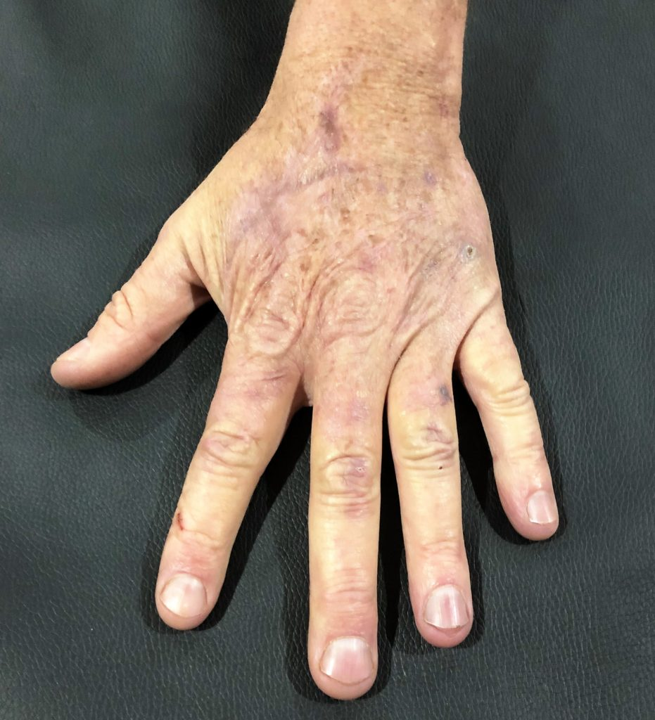 Patient's hand after 1-2 months of Certified Hand Therapy with Kris Siegenthaler. Patient's hand is completely healed and usable.