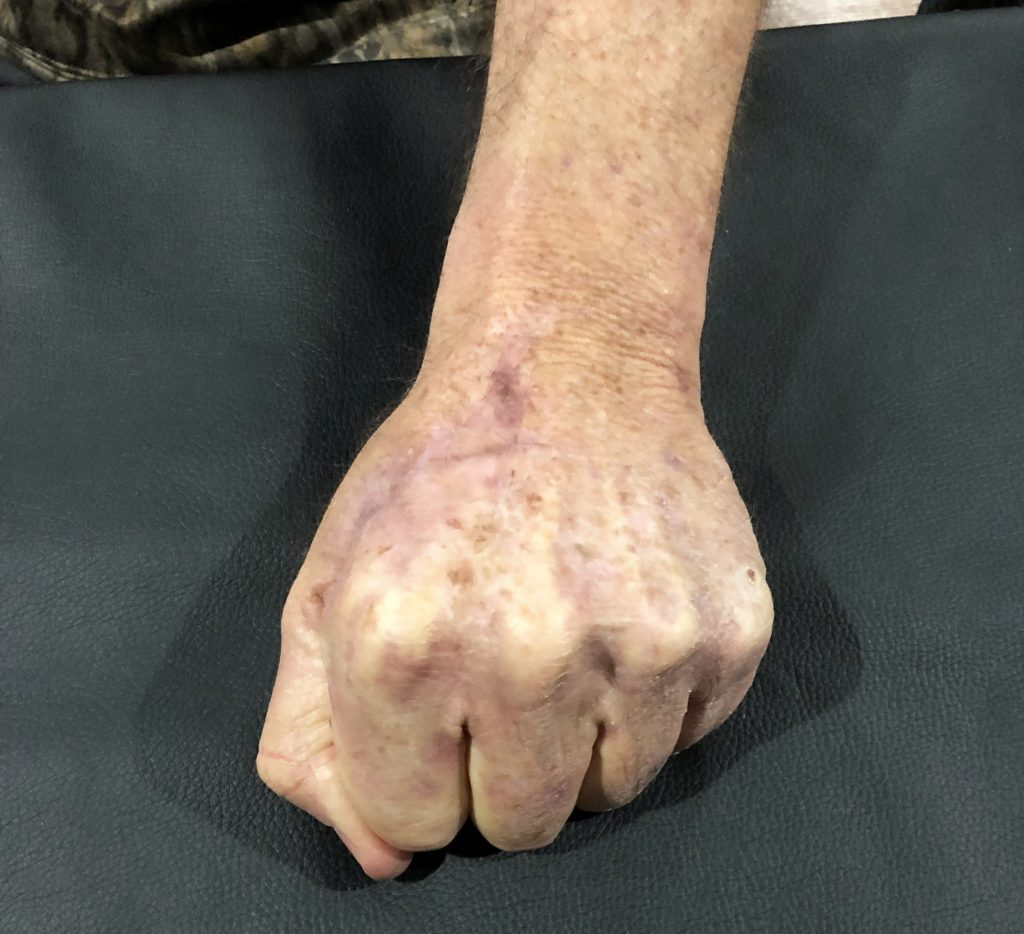 Patient's hand after Certified Hand Therapy with Kris. Patient is making a fist, demonstrating he's gained back full range of motion.