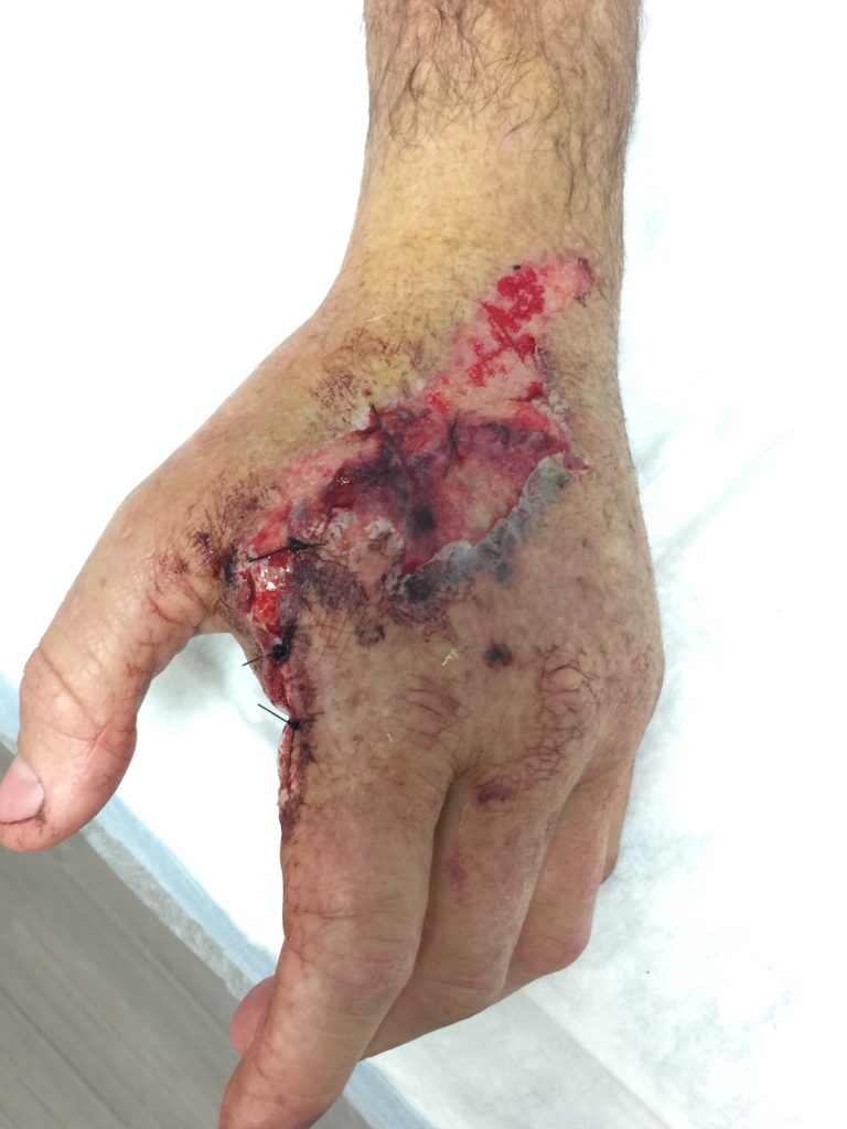 Patient's injured hand after surgery. The surgeon repaired the patient's hand and ordered Certified Hand Therapy.