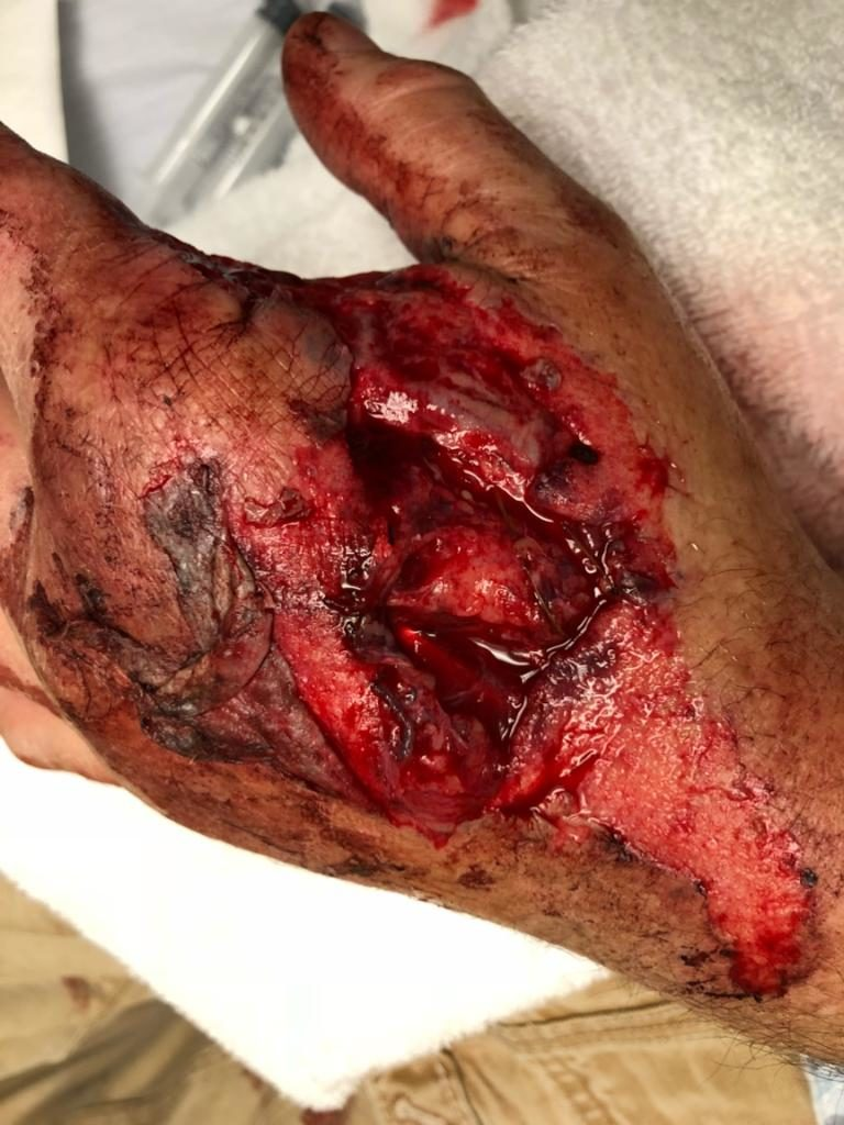 Severely injured hand. Patient was involved in an ATV accident that resulted in a deep laceration. After surgery, the patient required therapy provided by a Certified Hand Therapist.