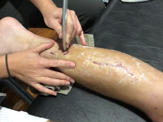 IASTM being used to loosen scar tissue and promote healing on the leg.