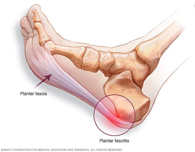 A picture showing the location of the plantar fascia and the area where plantar fasciitis occurs near the heel.